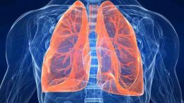 Tumore al polmone: un nuovo sistema per la diagnosi precoce tutto italiano